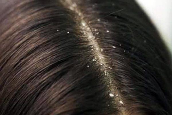 Diferencias-entre-caspa-y-cuero-cabelludo-seco
